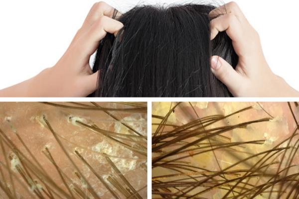 Jak pozbyć się problemów ze skórą głowy?